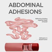 Abdominal Adhesions: Causes, Symptoms And Treatment