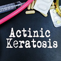 Actinic keratoses: Causes, Symptoms And Treatment