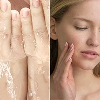 5 Ways to Treat Your Skin Allergy Naturally