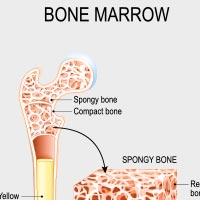 Bone Cancer: Causes, Symptoms And Treatment