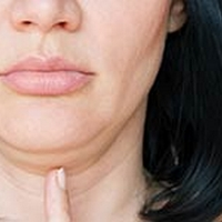 Double Chin: How To Get Rid Of It Naturally
