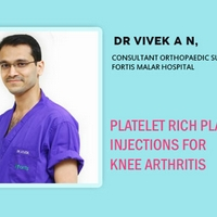 Platelet Rich Plasma Injections for Knee Arthritis
