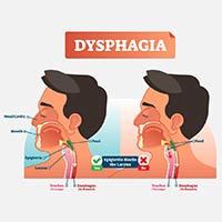 Dysphagia: Causes, Symptoms And Treatment
