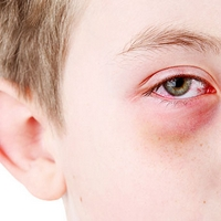 Itchy Eyes? These Allergens Could Be The Cause