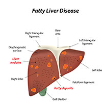 Fatty Liver: Causes, Symptoms And Treatment