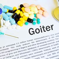 Goitre – Causes, Symptoms And Treatment