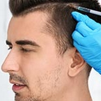 Considering A Hair Transplant? Read This First