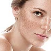 Hyperpigmentation Is Hormonal, Learn About Remedies