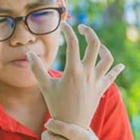Juvenile Arthritis: Causes, Symptoms And Treatment