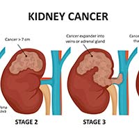 Kidney Cancer: Causes, Symptoms And Treatment