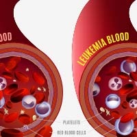 Blood Cancer/Leukemia: Causes, Symptoms And Treatment