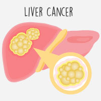 Liver Cancer: Causes, Symptoms And Treatment