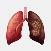 Lung Cancer: Causes, Symptoms And Treatment
