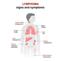 Lymphoma: Causes, Symptoms And Treatment
