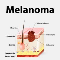 Melanoma: Causes, Symptoms And Treatment