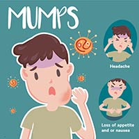 Mumps: Causes, Symptoms And Treatment