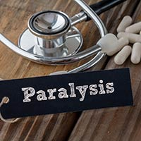 Paralysis: Causes, Symptoms And Treatment