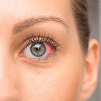 Red Spot On Eye: Causes, Symptoms And Treatment