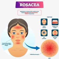 Rosacea: Causes, Symptoms And Treatment