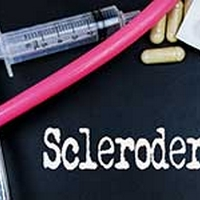 Scleroderma: Causes, Symptoms and Treatment