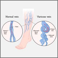 Varicose Veins: Causes, Symptoms And Treatment