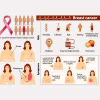 Breast Cancer: Causes, Symptoms And Treatment