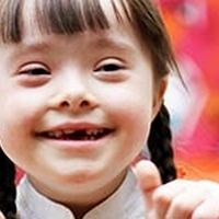 Down Syndrome: Causes, Symptoms And Treatment