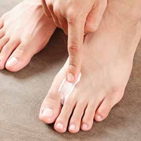 Monsoon Care: How To Beat Itchy Fungal Infections