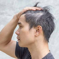 Grey Hair in Teens? Here's What You Can Do
