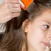 Home Remedies To Get Rid Of Head Lice