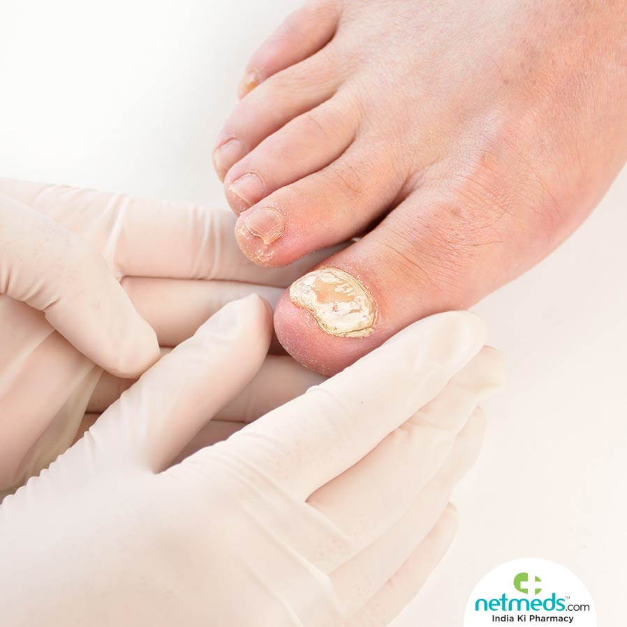 Fungal Nail Infection: Causes, Symptoms And Treatment