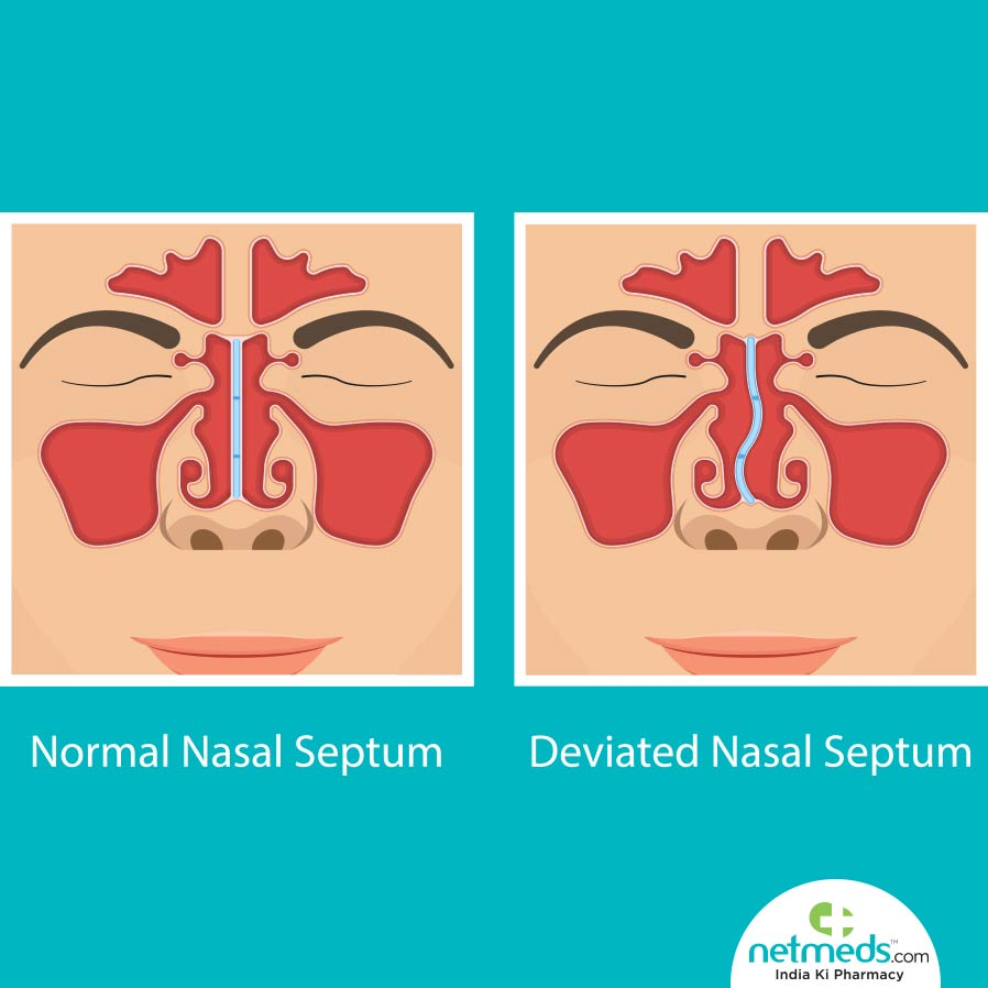 Comparison of Normal and Deviation Nasal