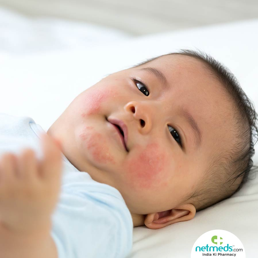 Natural remedies to promote baby's skin