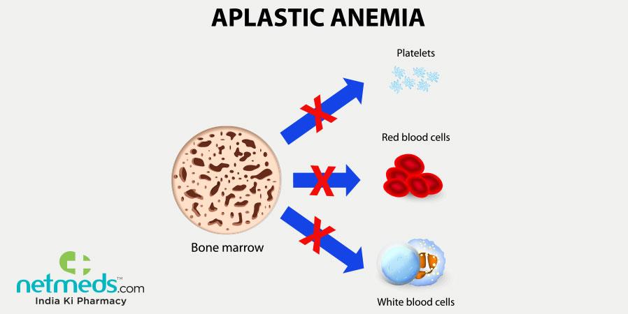aplastic anaemia