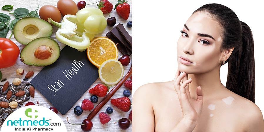 Skin Health food and woman with vitiligo