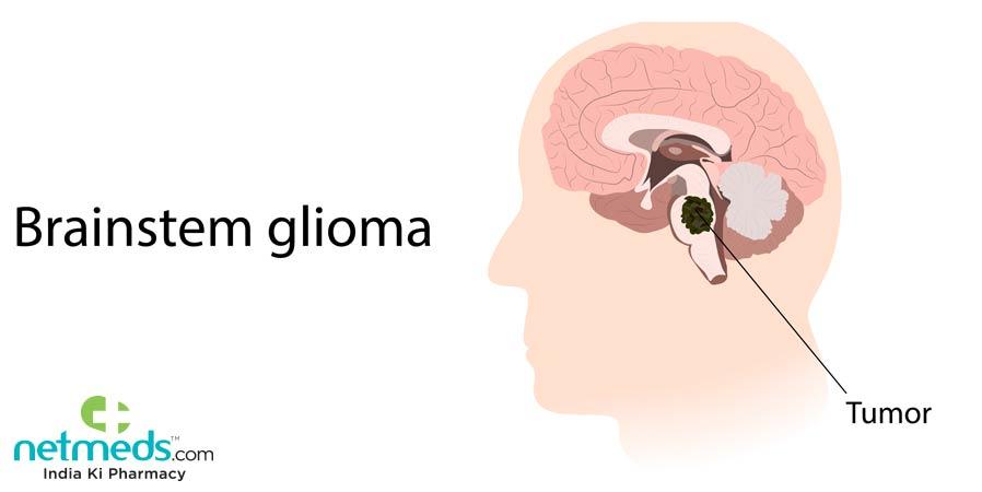 Brainstem Glioma
