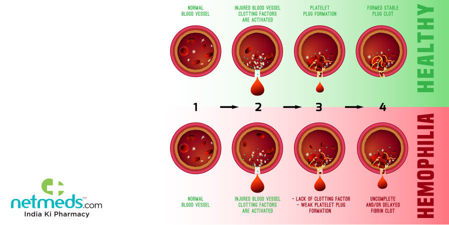 how hemophilia occurs