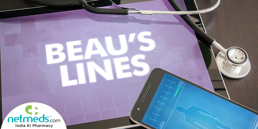 Beau's Lines