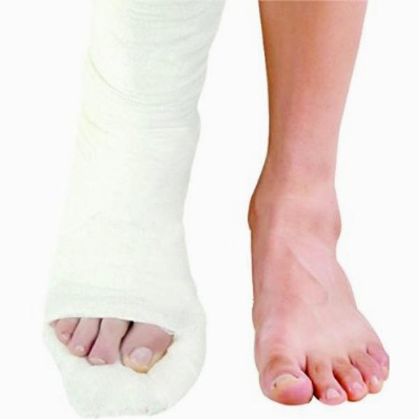 Dynamic Top Cast Plaster of Paris Bandage 2.7M 15 cm (4122-005)